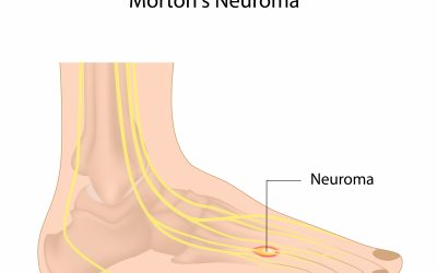 What is Morton's Neuroma Causes, Symptoms, and Treatment