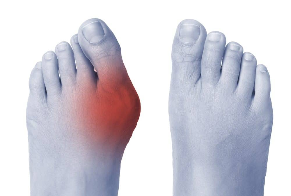 We Have the Solution to your Bunion Problems!