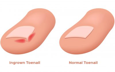 5 Tips on how to avoid Ingrown Toenails!