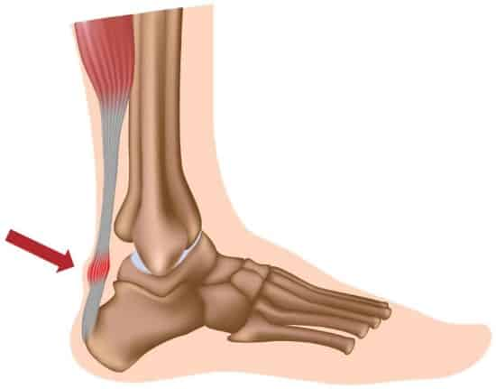 Achilles Tendinopathy & How To Fix It